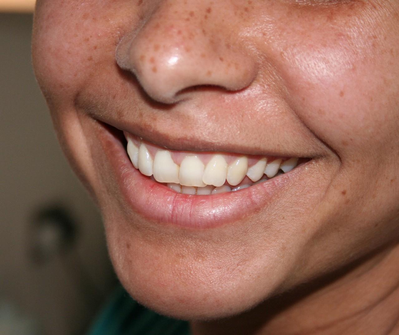 Jak dbać o skórę po 50 roku życia